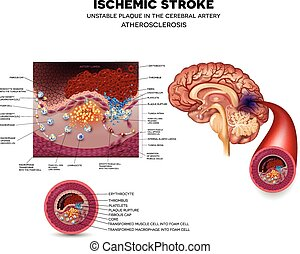 Unstable plaque formation and thrombus - Ischemic stroke in...