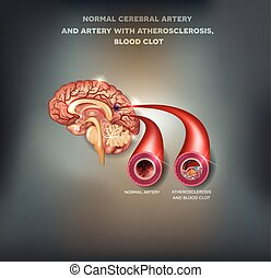 Healthy and unhealthy brain arteries - Normal cerebral...