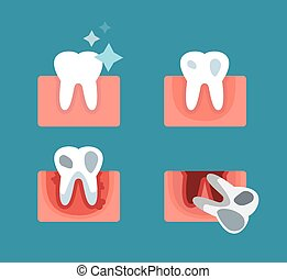 Periodontal disease stage steps illustration. Dental tooth...