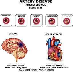 Artery disease, Atherosclerosis, Stroke and Heart attack...