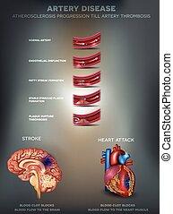 atherosclerosis,