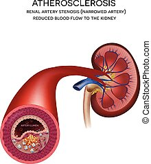 Renal artery disease. Atherosclerosis, fatty plaque...