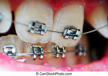 Braces Macro - This image is a closeup of crooked unaligned...