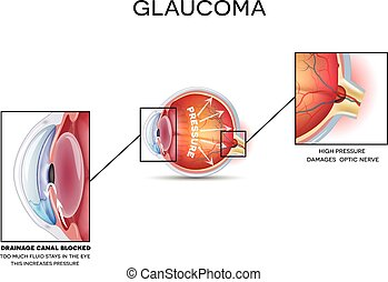 Glaucoma. Detailed anatomy of Glaucoma, eye disorder on a...