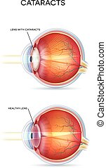 Cataracts. Human vision disorder, detailed anatomy of...