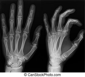 Left hand x-ray shoot in two versions.