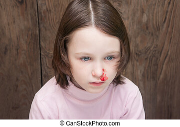 the child a girl looking directly nosebleed