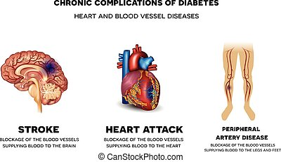 Chronic complications of Diabetes. Heart and blood vessel...