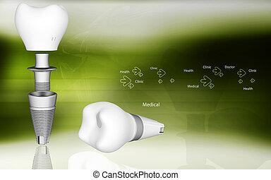 Dental implant - Digital illustration of Dental implant in...