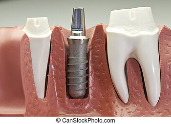 Dental Implant Model - Close up of a implant model. It shows...