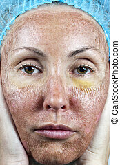 skin after a chemical peeling, a re - CosmetologySkin in the...
