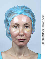 skin after a chemical peeling, a re - Cosmetology New skin...