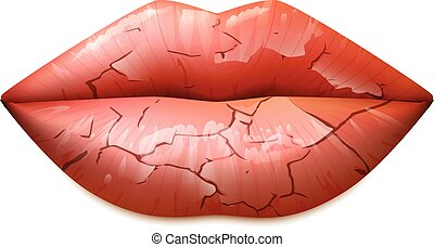 Dry Lips Illustration - Dry cracked woman lips in a classic...