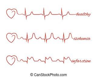 Heart beats various cardiogram vector set Electrocardiogram...