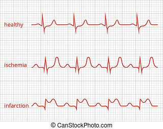 Heart cardiogram vector charts set. Healthy heart rhythm,...