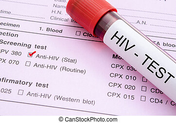 Sample blood collection tube with HIV test label. - Sample...