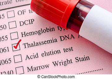 amostra, sangue, em, sangue, tubo, para, Thalassemia, ADN,...