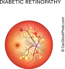 Diabetic retinopathy. The eye condition that affect people...