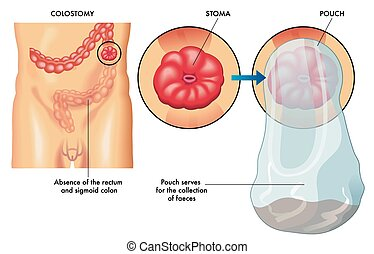 colostomy - medical illustration of an operation of...