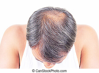 hair loss and grey hair, Male head with hair loss symptoms front side.