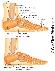 Heel Spur. Bones of the Foot and Ankle. Calcaneal spur....