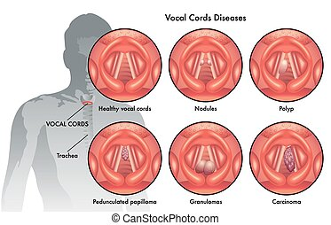 vocal cords diseases - medical illustration of the vocal...