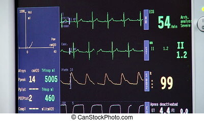 heart monitor in a hospital