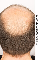 Man with a premature and incipient baldness