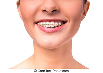 Woman with braces - Portrait of a beautiful woman with...