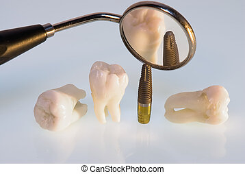 dental titanium implant - Real Human Wisdom teeth, titanium...