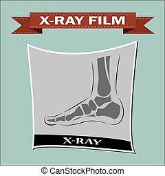pie, x-ray., vector,