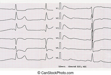 ECG with acute period of macrofocal posterior myocardial...