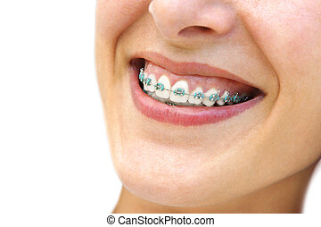 Teeth Braces - Detail of young womans smile showing white...
