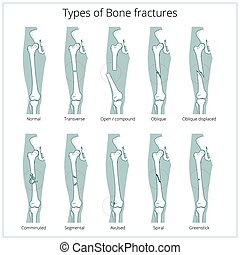 Types of bone fractures medical educational vector - Types...