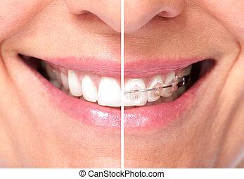 Healthy woman teeth.