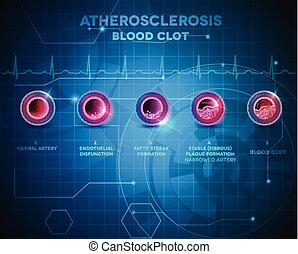 Artery atherosclerosis - Artery anatomy and atherosclerosis...