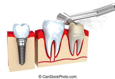Dental crown , implant and teeth , 3d image