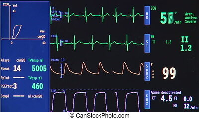 Heart monitor in hospital theatre