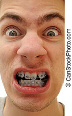 Crooked teeth - Young white causcasian man shows off his new...