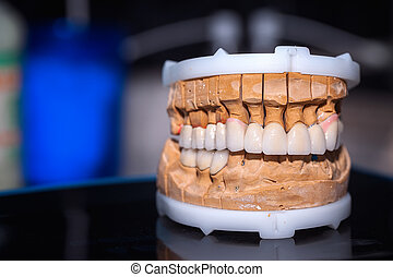 Dental Prosthesis Porcelain Zirconi