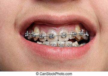 children teeth with braces - close-up view on children teeth...