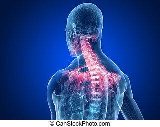 inflamed neck - 3d rendered illustration of a human skeletal...