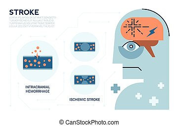 Stroke Brain Disease - Illustraiton of Stroke brain disease,...