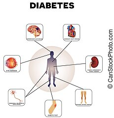 Diabetes complications detailed info graphic on a white...