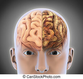 Healthy Brain and Unhealthy Brain