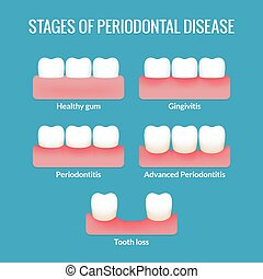 Periodontal Disease Chart - Stages of periodontal disease...