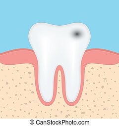 Human tooth with caries, Dental tooth health problem Vector