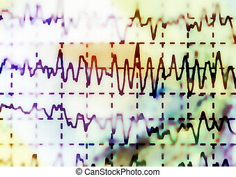 EEG for epilepsy, illustration - brain wave on...
