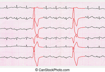 Tape ECG with ventricular premature beats quadrigemini -...