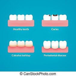 Dental health illustration - Common dental problems: caries,...